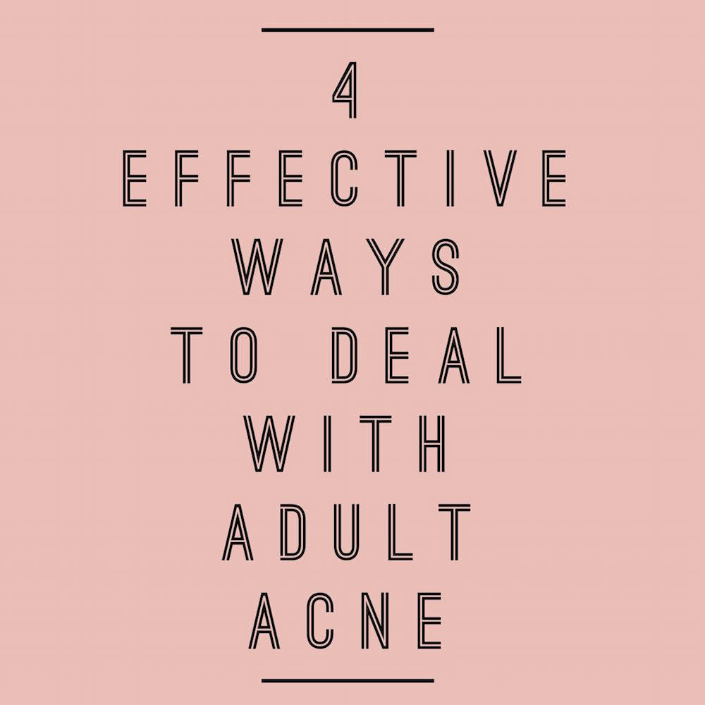 Adult acne? Here's how to deal // www.brokeandchic.com