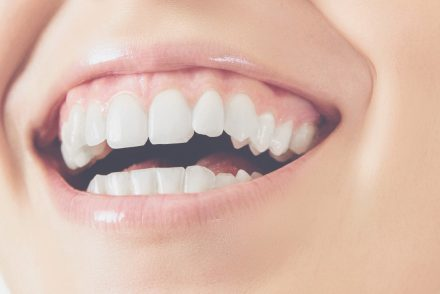 How to Strengthen Teeth and Gums: 10 Tips to Keep Your Teeth Healthy