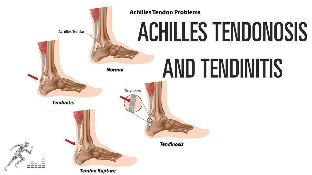 Achilles Tendinosis