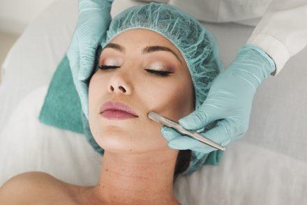 woman getting microneedling