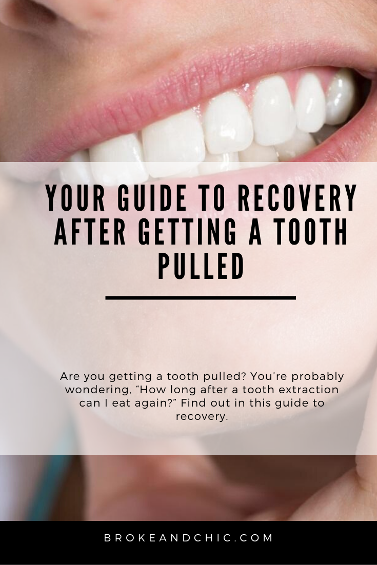 How Long After a Tooth Extraction Can I Eat?