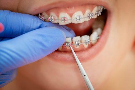 orthodontist working
