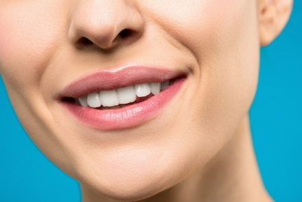 woman's teeth