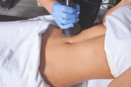 benefits of CoolSculpting